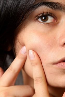 se debarrasser des acnes