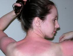 symptomes coup de chaleur
