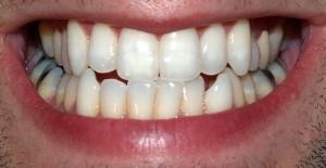 dents_adultes